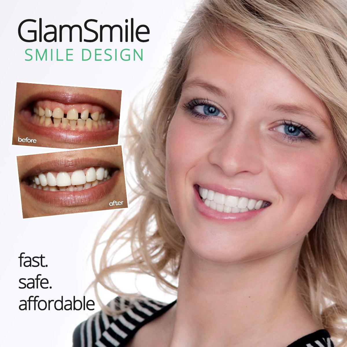 GlamSmile: Affordable Porcelain Veneers & Cosmetic Dentists