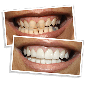GlamSmile Porcelain Veneers Before and After