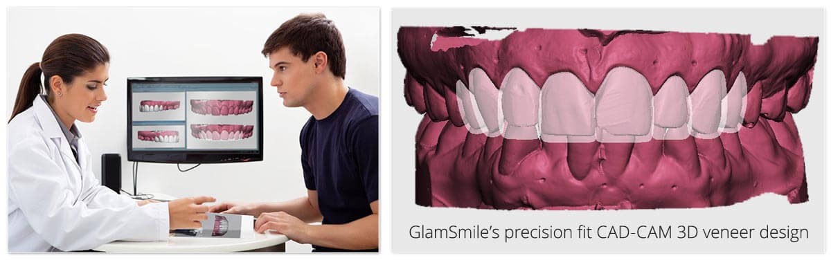 GlamSmile Consultation with Digital Previews