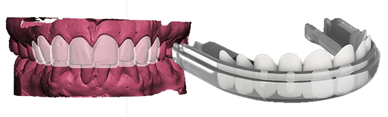 GlamSmile Basic Porcelain Veneers - Designed in 3D for the perfect smile