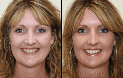 glamsmile-face1