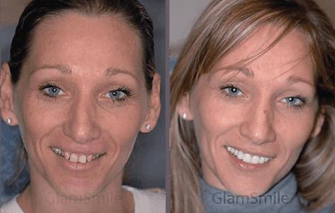 glamsmile-face2