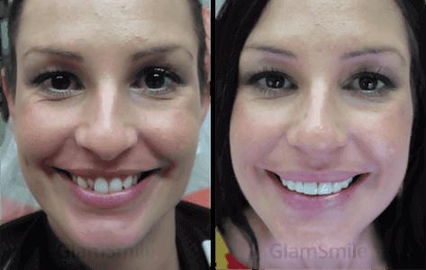 glamsmile-face4