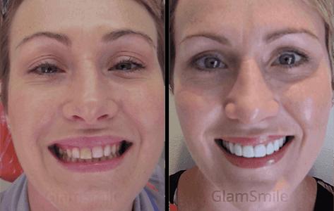 glamsmile-face5