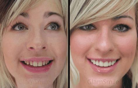 glamsmile-face6