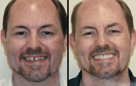 glamsmile-face7