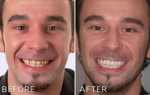 cheap Porcelain veneers before after results Perth