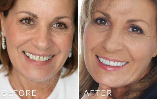 cheap porcelain veneers melbourne - Before- After