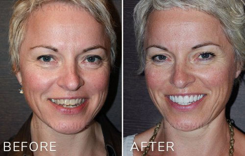 Cheap porcelain Veneers before after results