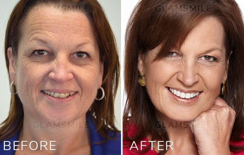 affordable dental veneers before after results gold coast