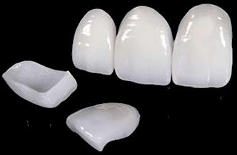 Porcelain Veneers