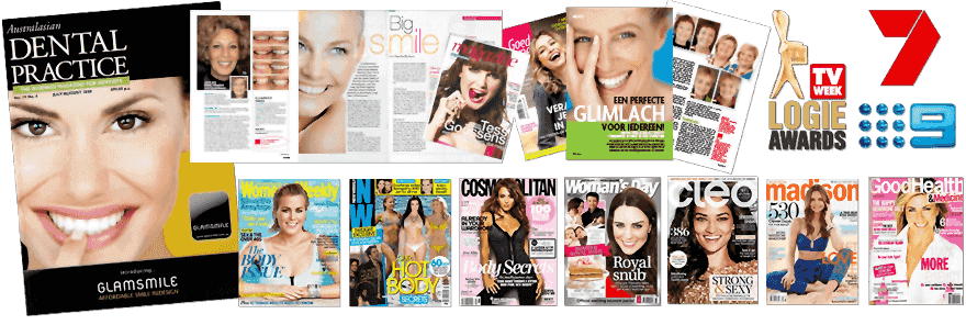 GlamSmile Porcelain Veneers in the media in Australia and around the world!