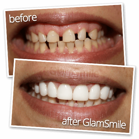 porcelain veneers sydney - before after Glamsmile